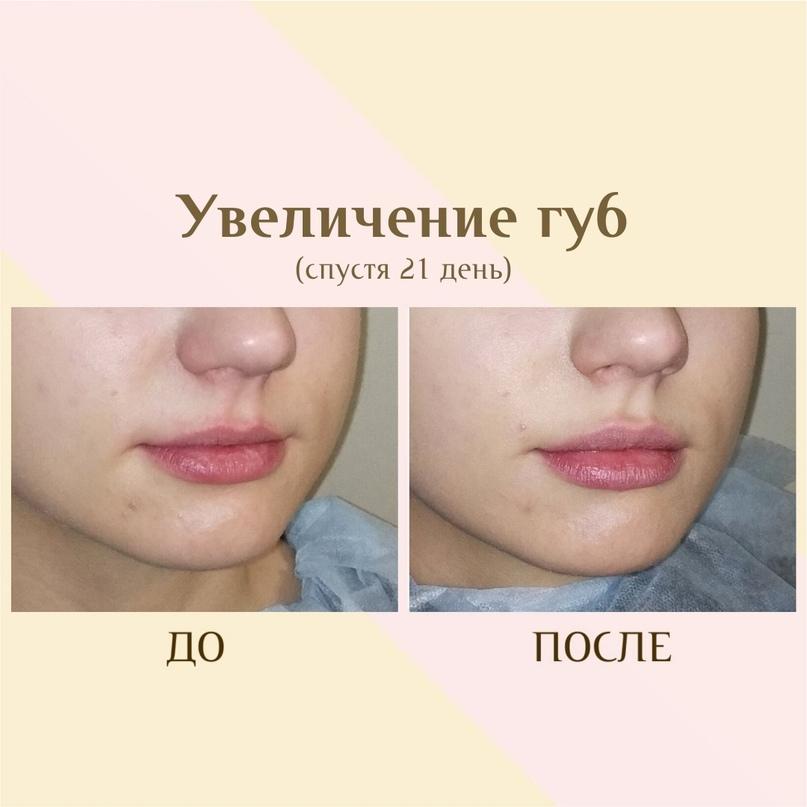 Эти же губы через 21 день