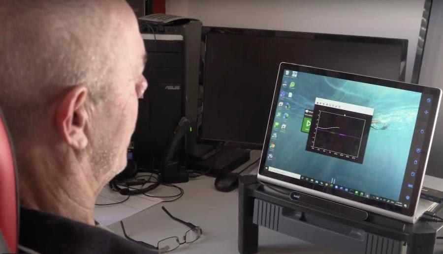 Человеческий мозг впервые подключили к компьютеру через вену без трепанации черепа