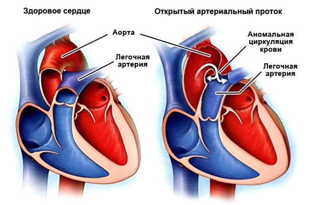 Открытый артериальный проток. Что это?   ВКонтакте