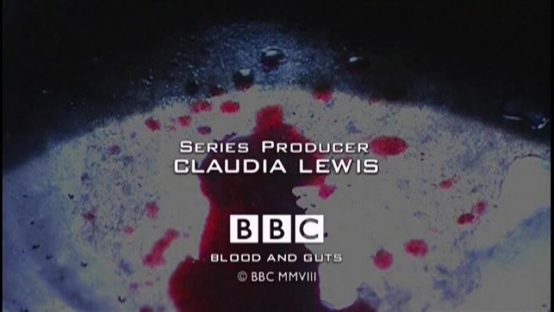 BBC Кровь и внутренности История хирургии 5 Кровавое начало