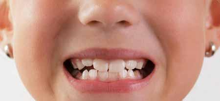 Косметическая стоматология исправляет прикус.