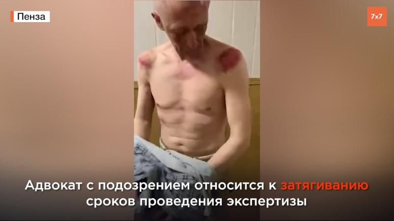 Пытки в полиции Адвокат Виталия Вьюнова рассказал о давлении на судмедэксперта
