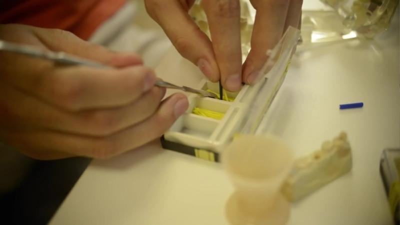 Изготовление вкладок прямым методом. Феррул эффект, стекловолоконные штифты в ортопедии
