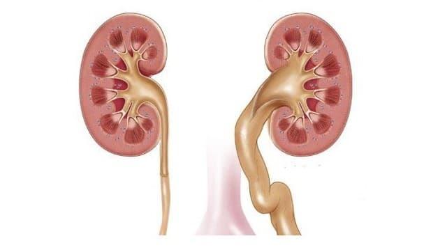 Гидронефроз: причины, симптомы, лечение
