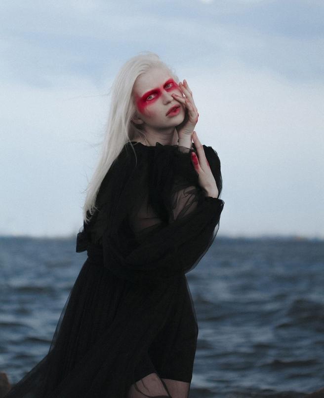 Модель-альбинос из Никеля снялась для Vogue