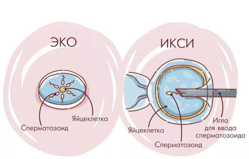 ЭКО ИКСИ в Москве – клиника Plan B