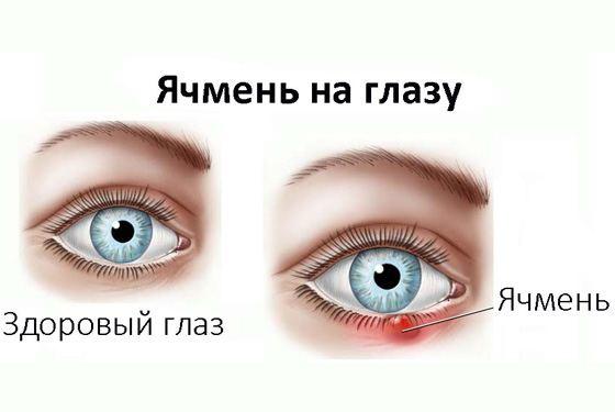 Лечение ячменя народными средствами  Ячмень — острое гнойное воспаление...
